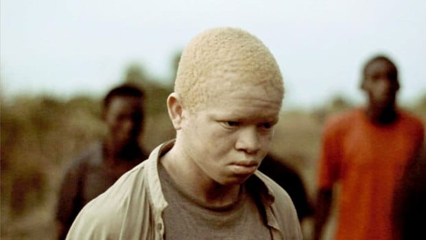 «L'héritage impossible»: the documentary film raising awareness on Albinos
