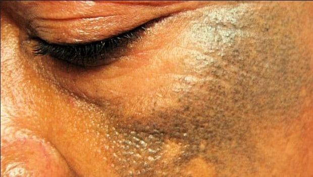 ivoire-depigmentation