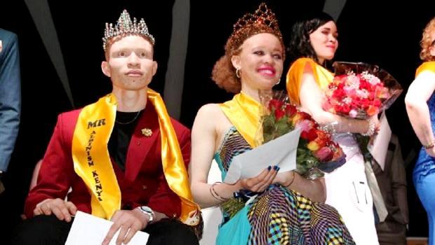 """Résultat de recherche d'images pour """"reines de beauté albinos"""""""