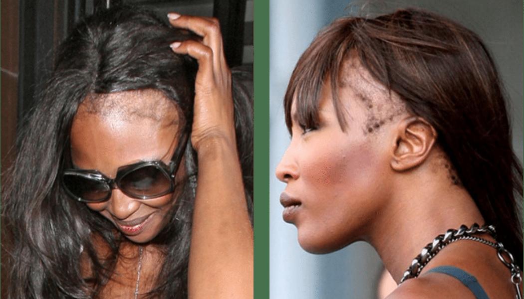 L'alopécie, ce secret que cachent plusieurs femmes africaines